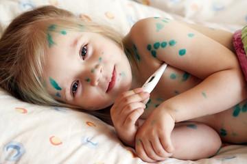 Girl suffers chickenpox