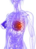 weibliche Brust mit markiertem Tumor poster