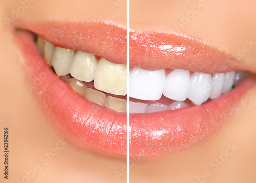 teeth whitening - 23842166