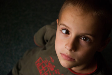 Boy with Strabismus