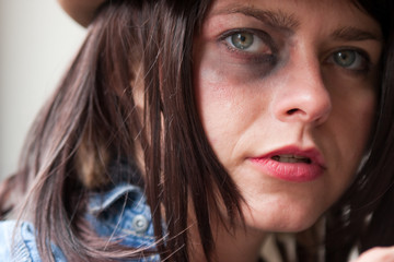 Close up of girls face with bruised eye