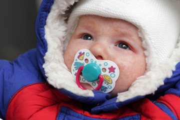 Infant has eczema on his face