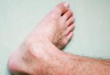 Skin rash poster