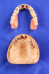 Dentaltechnik VIII