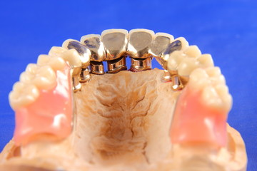 Dentaltechnik V