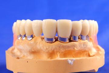 Dentaltechnik IV