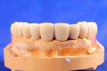Dentaltechnik III