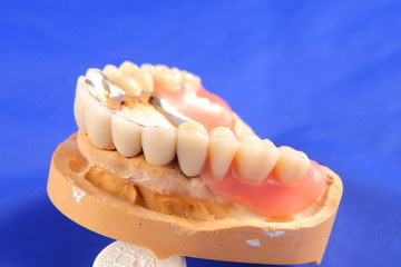 Dentaltechnik II
