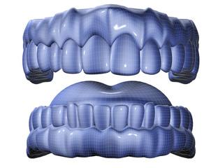 molde de dentadura