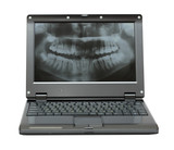 small laptop with dental picture of jaw poster