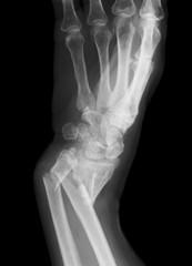 Broken forearm