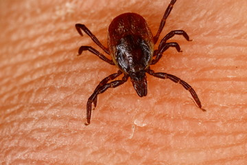 Ixodes ricinus tick on human skin