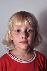 Kind mit blauen Flecken 3