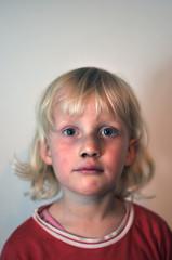 Kind mit blauen Flecken 2