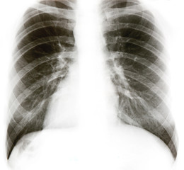 X-ray image of chest bones isolated on white.