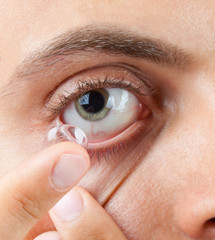 Application of contact lens