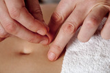 Acupuncture hands poster