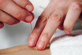 Working hands of acupuncture poster