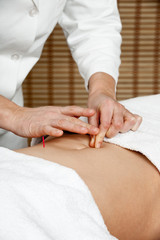Acupuncture treatment to belly