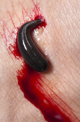Blood sucking leech