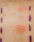 Skin Allergy Patch Test on Back of Patient
