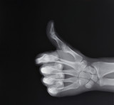 X-ray of hand making thumbs up gesture