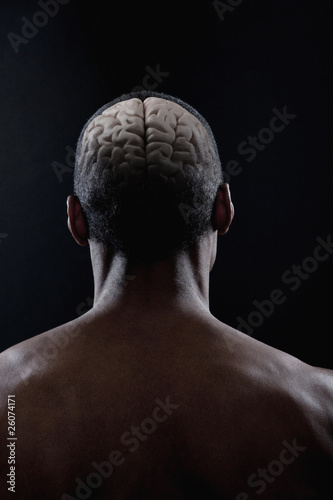 Brain of mixed race man