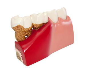 Modell  verschiedener Zahn Krankheiten.