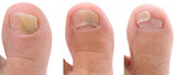 A sequence of a toe nail suffering from fungus infection. poster