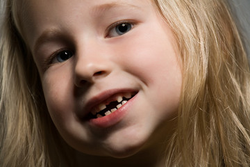 little girl without a front tooth