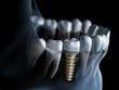 Zahnimplantat 3 - 27104509