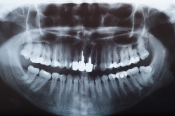 X-ray, rtg of dental detail