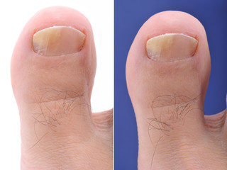 Close up image of foot toe nail suffering from fungus infection