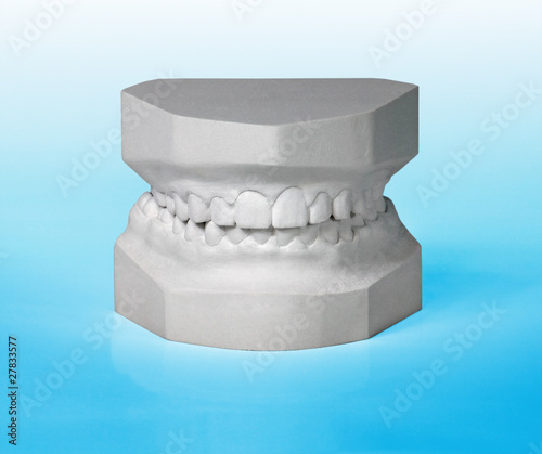 Front view of a plaster study model on blue background
