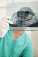 Dentist holding dental panoramic xray