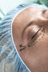 Close up of patient's face with incision lines