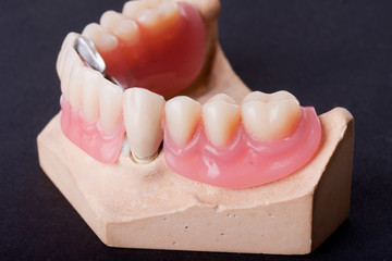 dental wax model