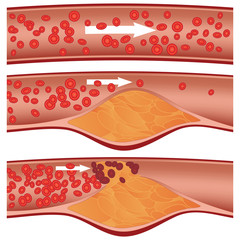 Cholesterol plaque in artery (atherosclerosis) illustration
