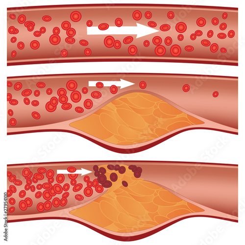 Cholesterol plaque in artery (atherosclerosis) illustration - 27954100