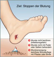 Blutungen allgemein. Erste Hilfe bei Wundversorgung