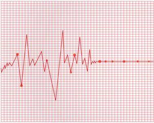Heart cardiogram - vector