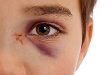 Gebrochene  Nase und verletztes blaues Auge nach Unfall