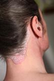 psoriasis - schuppenflechte am Hals, Nacken u.ohr