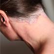 psoriasis - schuppenflechte am nacken und Hals