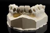 plaster cast, upper jaw poster