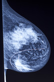 Mammogram - Needle Localization