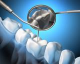Leczenie zęba - 28738917