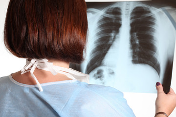 donna medico osserva una radiografia