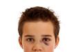 Verletzter Junge mit blauem Auge