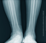 Ankle x-ray poster